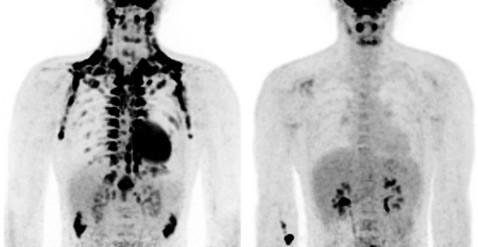Биологи нашли у взрослых полезную жировую ткань