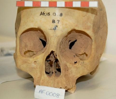 Биологи объяснили различия вразмерах мозга людей