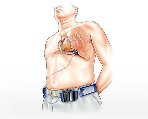Ventrassist полувечный двигатель для человеческого сердца
